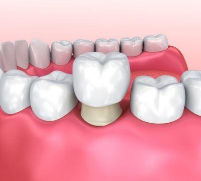 Dental Crowns | Tooth Crowns | Dental Crown Services - Cork City