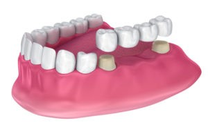 dental bridge - tooth loss - replacement  cork city dentists