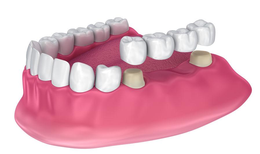 dental bridge cork