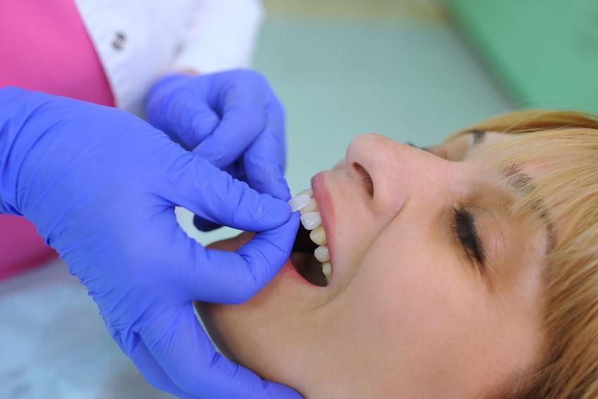 dental veneers - Cork City