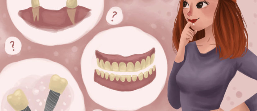 Tooth Loss - Missing tooth replacement options