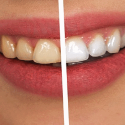 What to do while teeth whitening