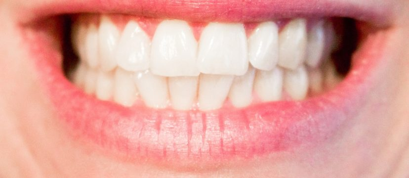 Teeth whitening - Frequently asked questions