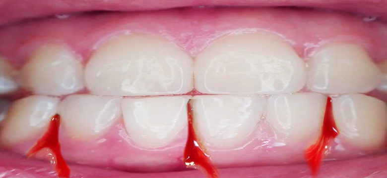 Bleeding Gums - causes and treatment - blog by Shandon Dental | Cork Dentists