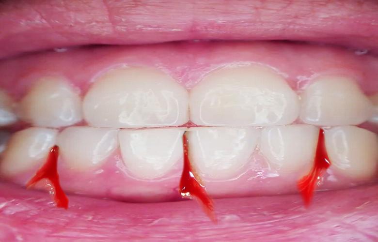 Bleeding Gums, causes and treatment blog by Shandon Dental | Cork Dentists