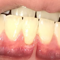 Gum disease - gingival recession