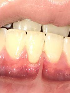 Gum disease - gingival recession